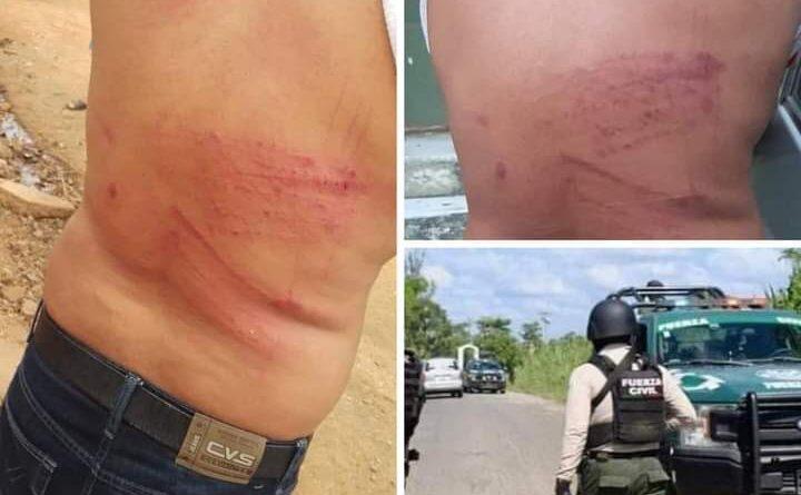 Elementos de la Fuerza Civil, golpean y amenazan a presidente del PRI en Soteapan